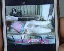 飞来横祸!济阳一女子洗澡时致特重度烧伤住进ICU