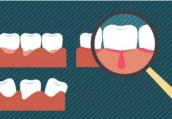 牙龈总是出血怎么办?牙龈炎的症状有哪些?