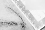 为使打人者被追刑责不惜把伤口切长,温州一男子涉诬告被刑拘