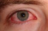 研究发现新冠病毒可在眼内存活数周,眼睛发红或为感染前兆